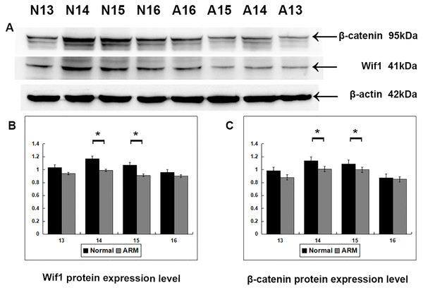 Western blot analysis of Wif1 and β-catenin protein.