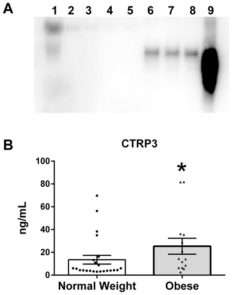 CTRP3 in human breast milk (BM).