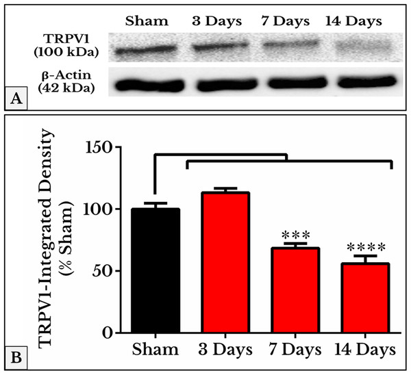Representative immunoblots and quantitative densitometry of TRPV1 in DRGs of sham and cancer animals (after 3, 7 and 14 days of injection).