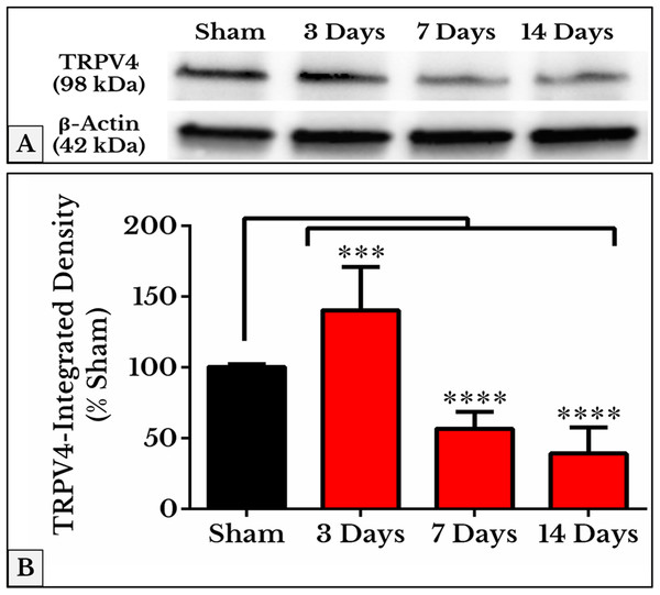 Quantification of TRPV4 immunoblots in DRGs of sham and cancer animals (after 3, 7 and 14 days of injection).