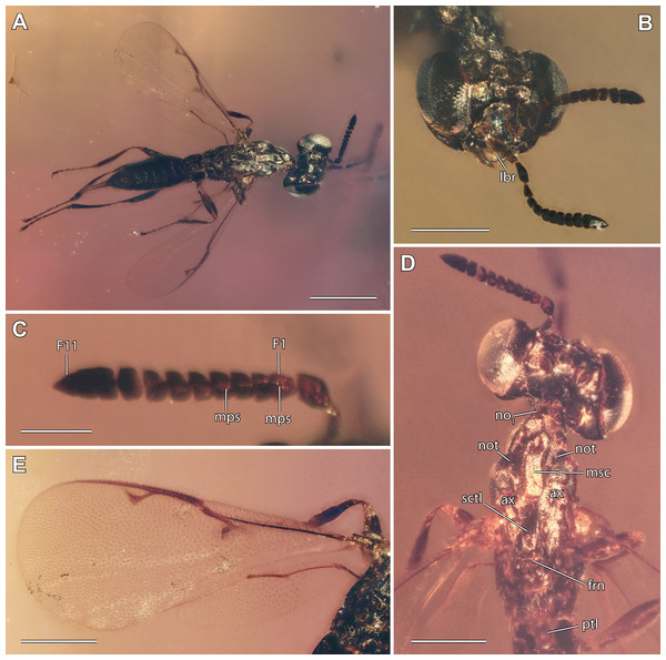 Digital microscopic images of Diversinitus attenboroughi holotype, male.