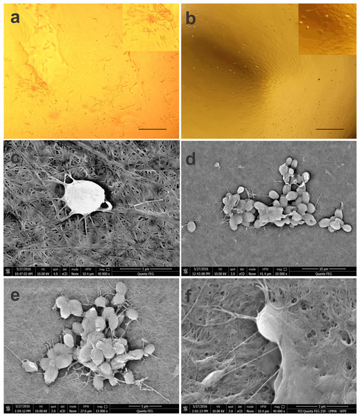 Photomicrographs of BM-MSCs adhered to the bacterial cellulose membrane (BCM) and scanning electron microscopy showing BM-MSC anchorage and biointegration with the BCM.