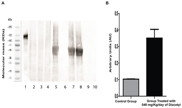 Western blotting for acetylated proteins from lung samples.