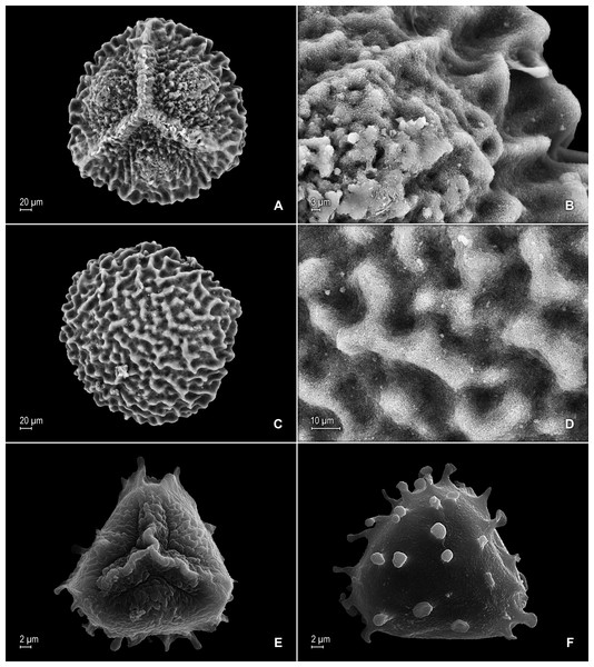 Scanning electron micrographs of mega- and microspores of S. agioneuma.