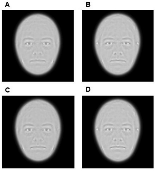 Average images of all Moyamoya patients (A) and all controls (B). Average images of patients (C) and controls (D) with low BMI.