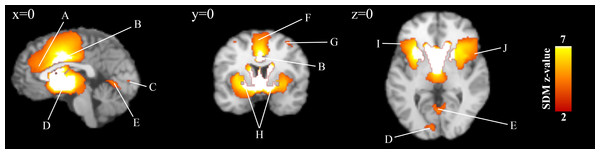 Overlay of brain areas activated in loss anticipation events (x=0,y=0,z=0).