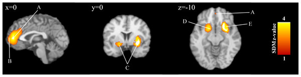 Overlay of brain areas activated in reception of loss events (outcome)(x=0,y=0,z=−10)
