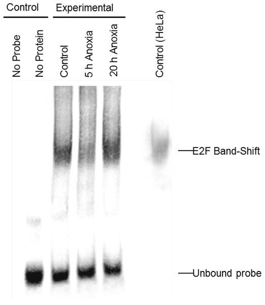 Electromobility shift assay (EMSA) for the E2F family of transcription factors.