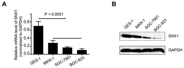 SNX1 expression in gastric cell lines.