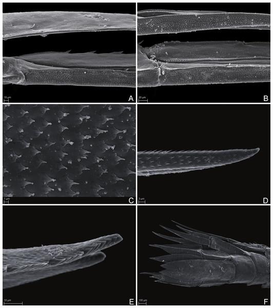 Scanning electron microscope images of Rhachotropis saskia n. sp.