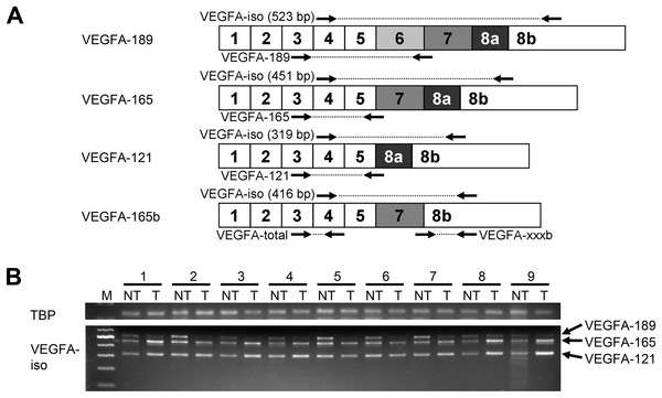 Spectrum of VEGFA isoforms expressed in HCC and NT liver tissue.