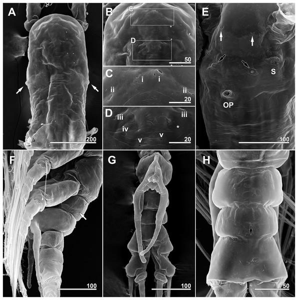 Monstrillopsis longilobata Lee, Kim & Chang, 2016, male, SEM.