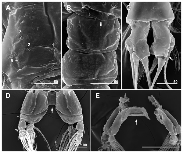 Monstrillopsis longilobata Lee, Kim & Chang, 2016, male (A–D) and female (E), SEM.