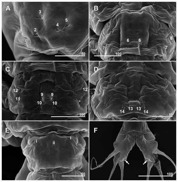 Monstrillopsis longilobata Lee, Kim & Chang, 2016, female, arrangement of pit-setae (2–14) and urosomal pores (i, ii), SEM.