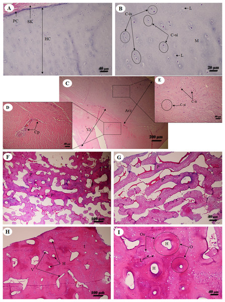 Low and high magnification of histological sections of hyaline cartilage from articular cartilage of femoral head (A, B), fibrocartilage from meniscus (C) with vascular (D) and avascular zone (E), flat bone from parietal bone (F, G) and long bone from cranial mid-shaft of right humerus (H, I).