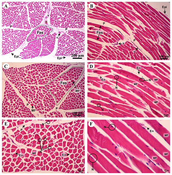 Low and high magnification of histological transverse sections (A, C, E) and longitudinal sections (B, D, F) of striated muscle from quadriceps femoris muscle.