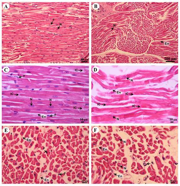 Low and high magnification of histological sections of cardiac muscle from right atrium (A, C, E) and right ventricle (B, D, F).