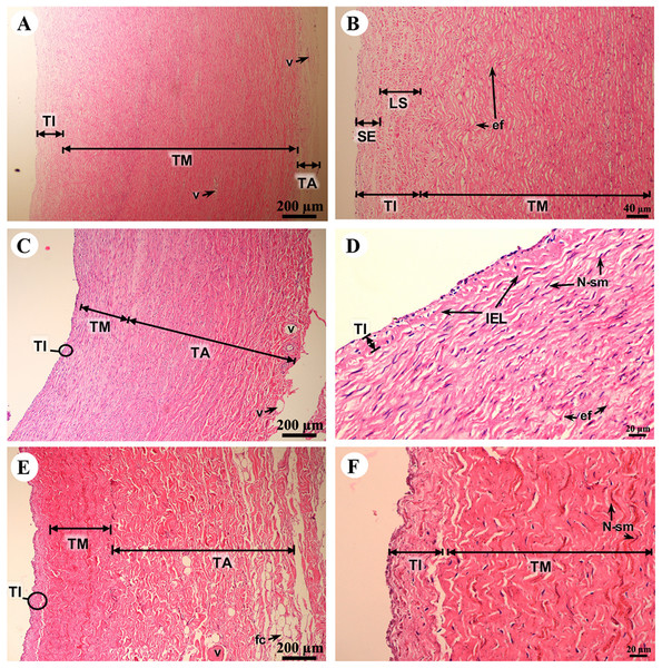 Low and high magnification of histological sections of the aorta (A, B), pulmonary artery (C, D) and caudal vena cava (E, F).