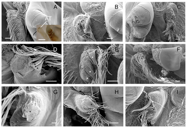 Scanning electron micrographs and light micrograph of the accessory teeth of Dilocarcininae (A–F) and Trichodactylinae (G–I) species.