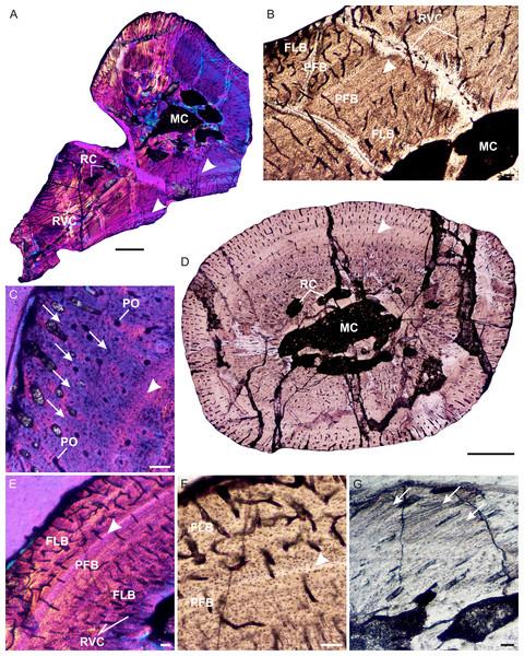 Limb bone osteohistology of Prozostrodon brasiliensis UFRGS-PV-248-T.