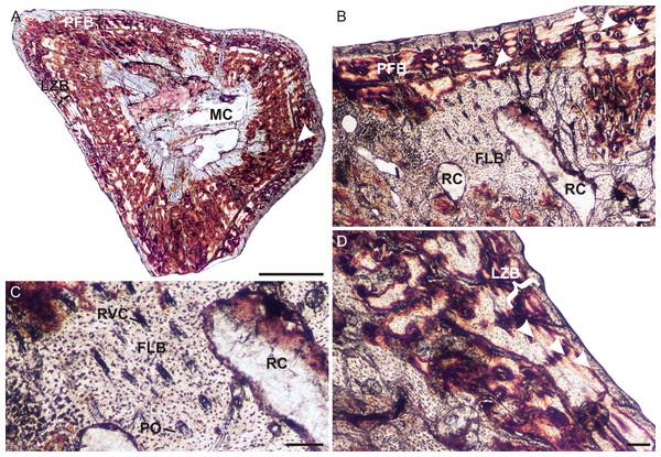 Humeral osteohistology of Irajatherium hernandezi UFRGS-PV-1072-T.