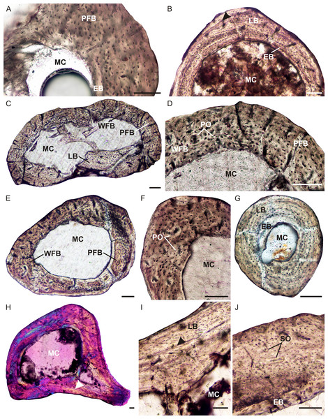 Limb bone osteohistology of Brasilitherium riograndensis.