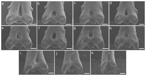 SEM images of the pinnulae of P. delhezi. UERJ-PNT 525.
