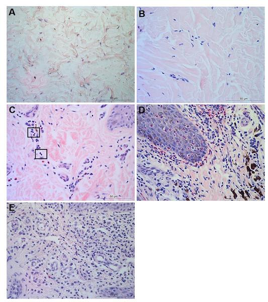 Descriptors of leukocyte cell infiltration in ovine interdigital skin dermis.