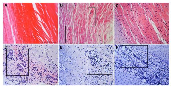 Descriptors of parakeratosis and micro-abscesses in ovine interdigital skin.