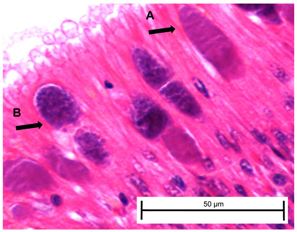 Candidatus Xenohaliotis californiensis inclusions within posterior esophagus epithelia from white abalone held at 18.5 °C and Ca. Cx exposed at 161 days.