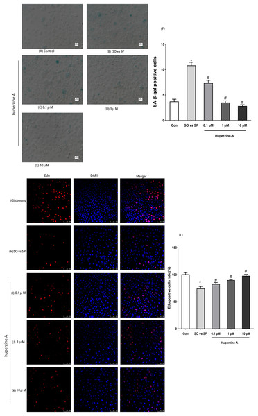 The expression of SA-β-gal and Edu by immunofluorescence labeling.