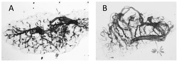 Photograph of dry ovaries of Culex quinquefasciatus.