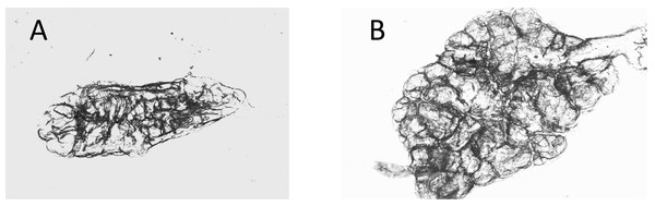 Dry ovaries of Anopheles arabiensis (A) nulliparous; (B) parous.