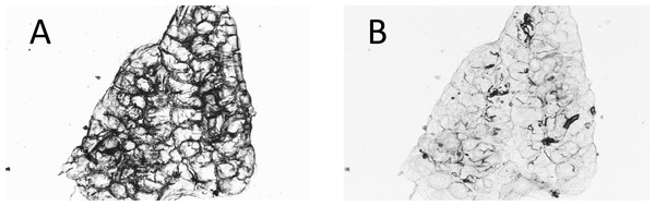 Ovary of mosquito with yolk (A) before and (B) after adding water to the dry preparation.