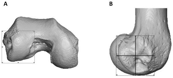 Partitioning of the lateral condyle into sub-regions in a Pan specimen.