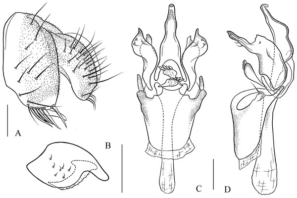 Pseudostegana ximalaya sp. nov., male terminalia.