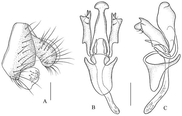Pseudostegana zhuoma sp. nov., male terminalia.