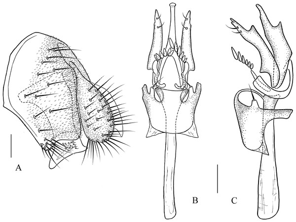 Pseudostegana mailangang sp. nov., male terminalia.