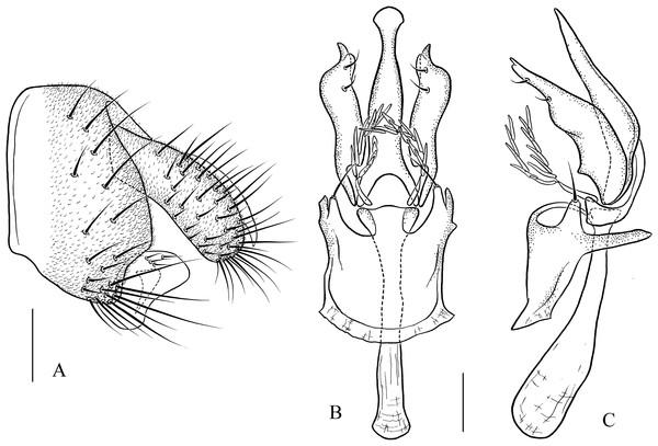 Pseudostegana mystica sp. nov., male terminalia.