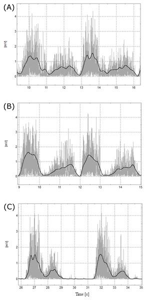 Representative EMG data.