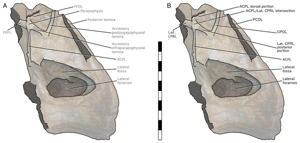 NHMUK R2095, the holotype and only vertebra of Xenoposeidon proneneukos, in left lateral view, with interpretative drawings.