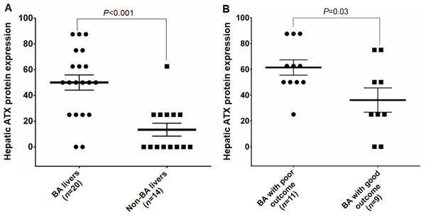 Hepatic ATX protein expression in study subjects between different groups.
