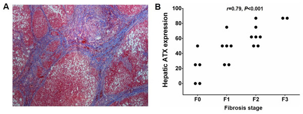 Hepatic ATX expression and liver fibrosis.