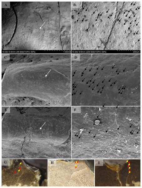 SEM (SE) and histological observations of clavicle radial ridges for Tc2.