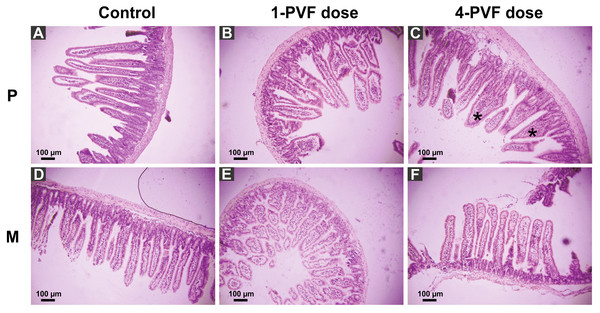 Effect of P. canaliculata PVF on mice small intestine morphology.