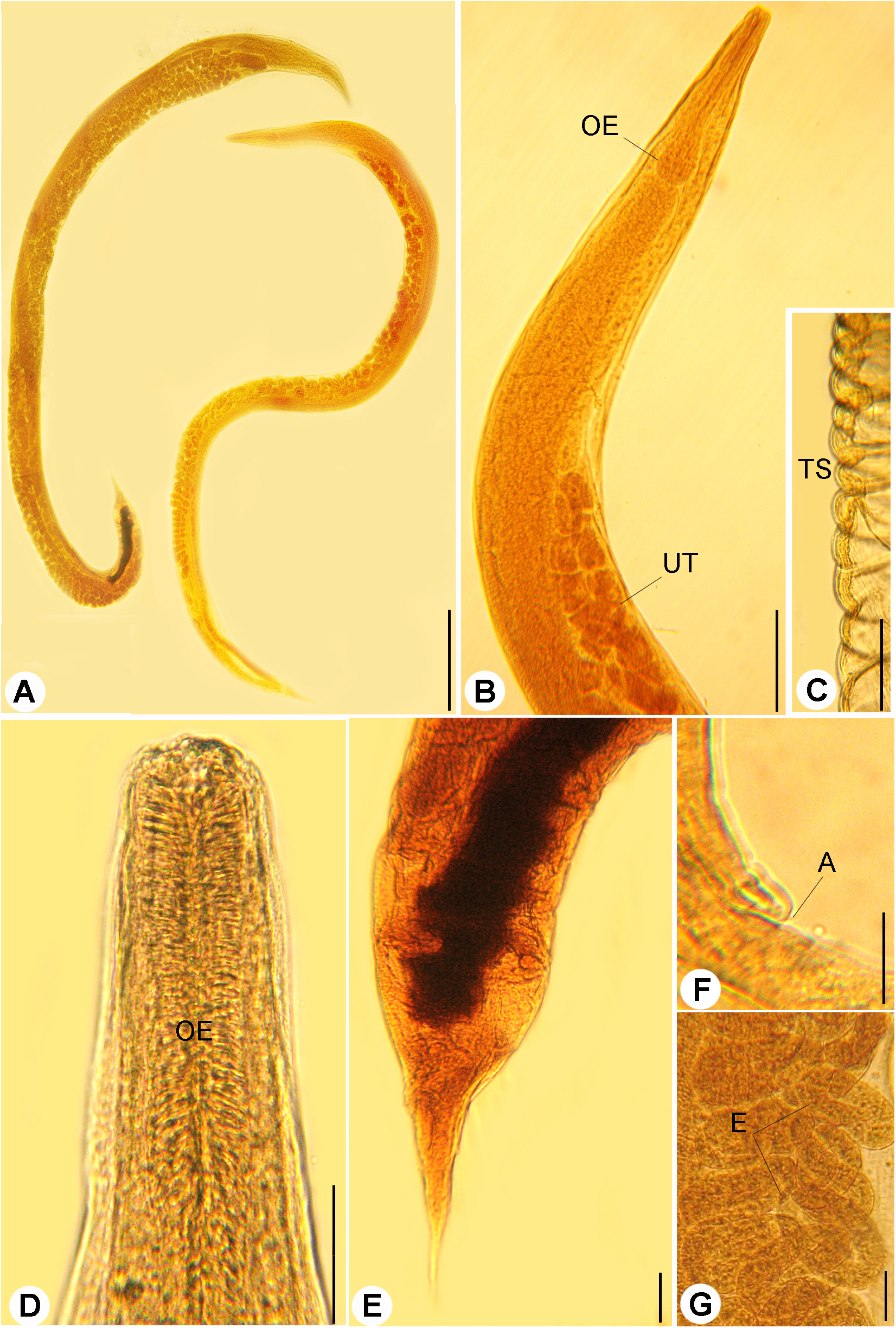Rhabdias bufonis (Rhabdiasidae) from the lung of the African