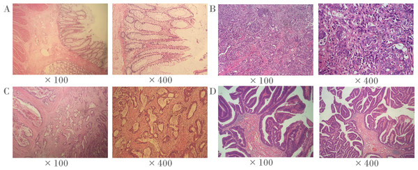 Representative histopathological photographs.