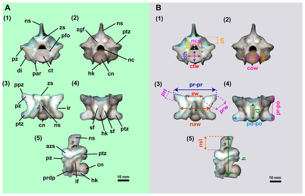 Isolated midtrunk vertebra of Boa constrictor evidencing the anatomical traits and quantitative data here analysed.