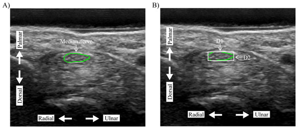 Quantification of the (A) median nerve cross-sectional area (MNCSA) by tracing method, and (B) diameters of median nerve, D1 and D2, by minimum bounding rectangle method.