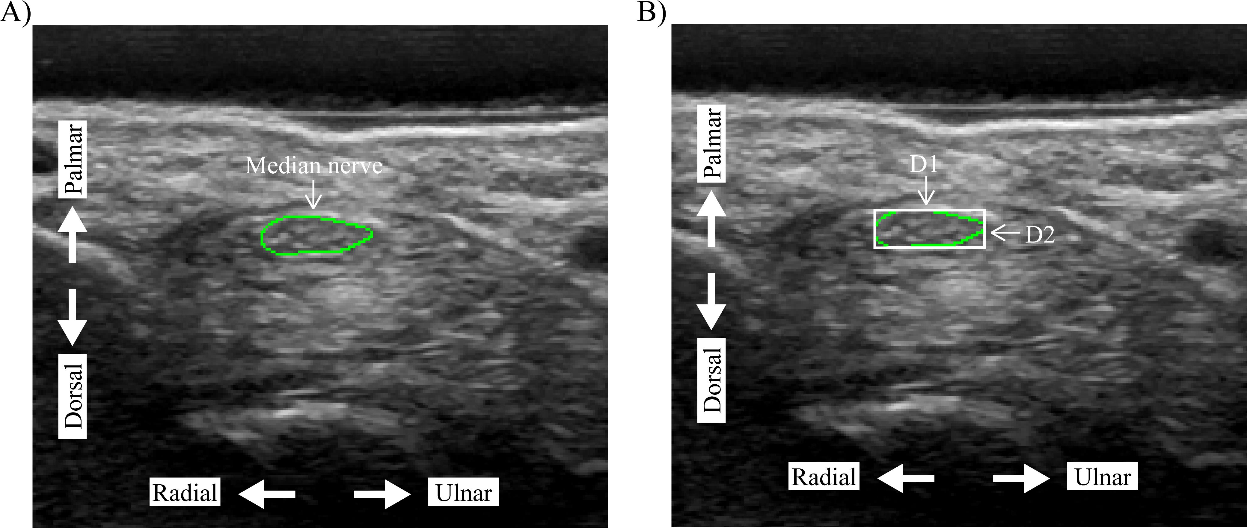 Deformation of the median nerve at different finger postures and